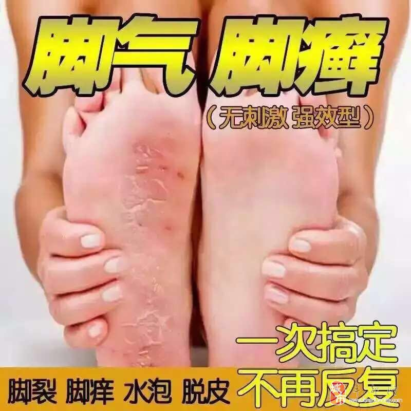 男女老少只要你有真菌感染皮肤问题